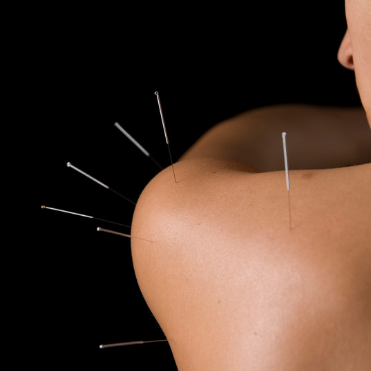 acupuncture shoulder