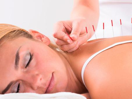 Grossesse et acupuncture