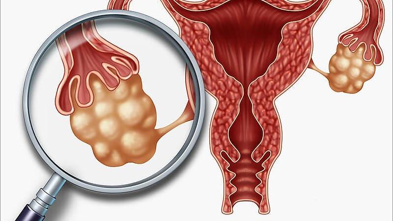 НМО. Актуализация терапии полиэтиологичных вагинитов