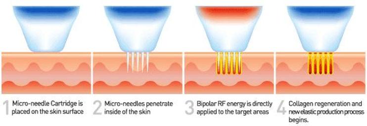 RF-Microneedling.jpg
