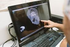 דר אשר בוחן סריקת MRI.jpg