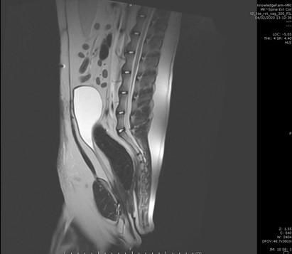 MRI סקרום.JPG