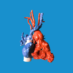 Modelo para evaluación de trasplante cardíaco