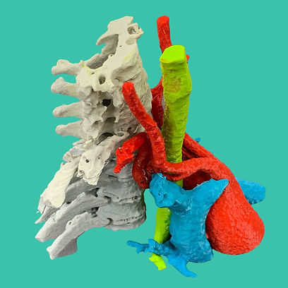 Biomodelo 3D Cirugia