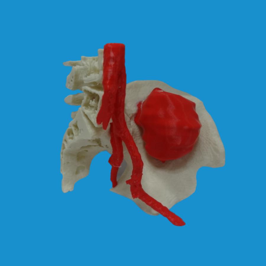 Resección de osteosarcoma