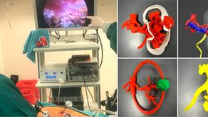 Uro-Oncología 3D: ¿Cómo planificar nefrectomías parciales laparoscópicas?