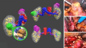 Reconstrucción 3D en Urología: Ahorro y cambio del plan quirúrgico