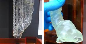 Aneurisma aórtico abdominal: Del 3D al stent personalizado