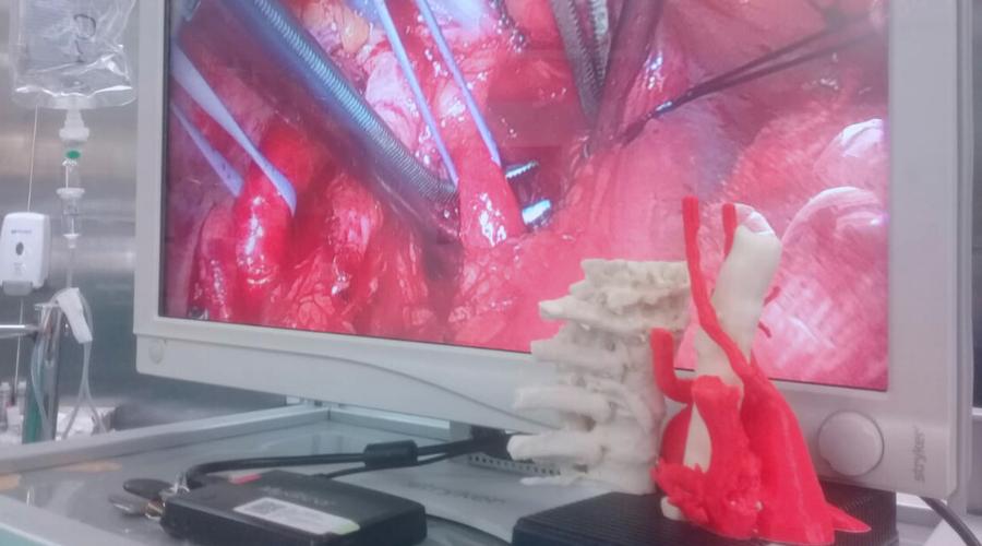 Cirugía cardiopulmonar - Fundación Favaloro