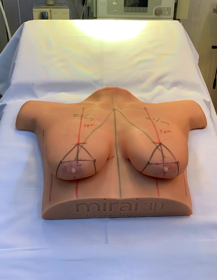 Breast Surgical Training