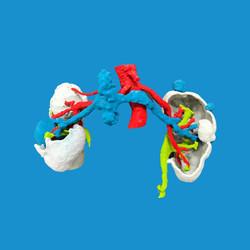 Biomodelo para Uro-oncología