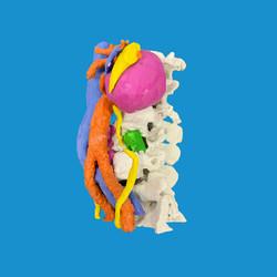Biomodelo para neurocirugía