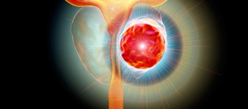 dt_190917_prostate_cancer_tumor_800x450_edited_edited.jpg