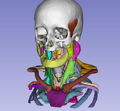 3D_Model_Slicer_edited.jpg