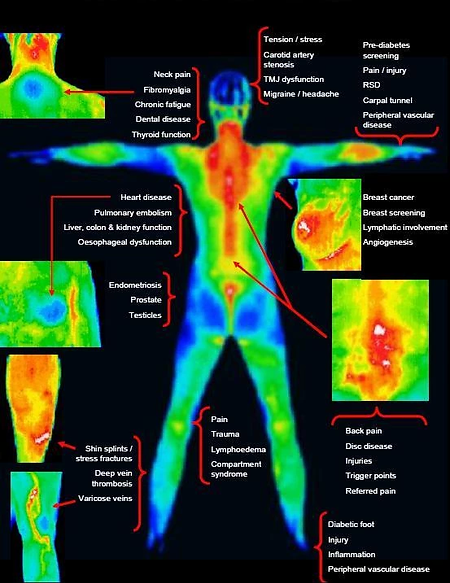 Thermography full body.webp