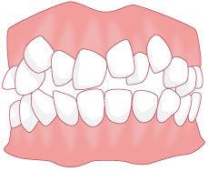 歯3 のコピー.jpg