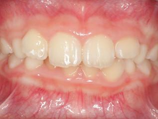 過蓋咬合(かがいこうごう)はどんな歯並びなの?子どもの矯正治療方法は?(子どもの歯並びと歯科矯正の話6)