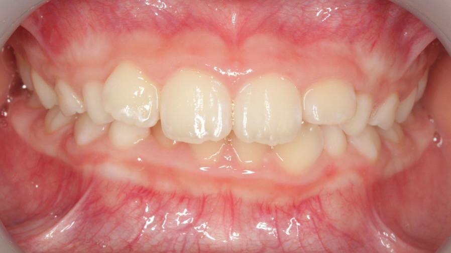 初診時はオーバーバイトの大きさと下顎前歯の叢生で来院