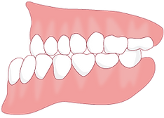 下の前歯が出ている.png