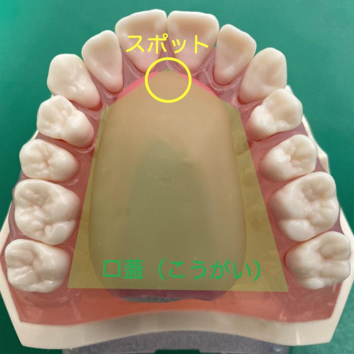 スポットの位置は上あご前歯の裏の付け根部分にあります。