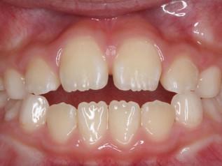 開咬ってどんな歯並びなの?小児期の矯正治療方法は?(子どもの歯並びと歯科矯正の話5)
