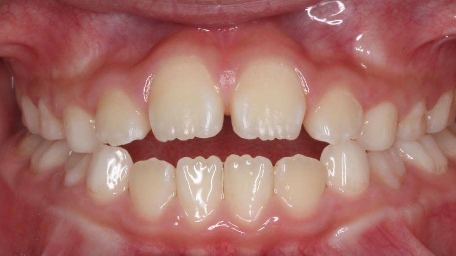 小児の歯並び異常の1つ開咬です。奥に舌が見えています。この場合矯正治療を行うことで歯並びが改善される場合があります。