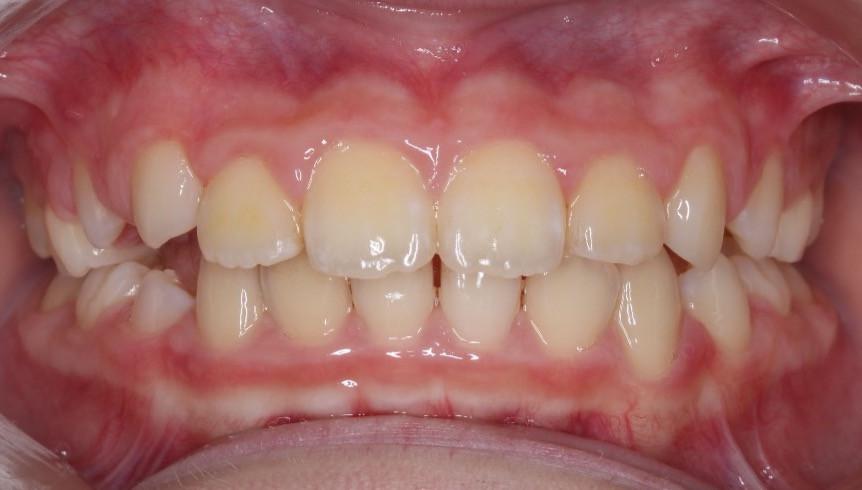 マイオブレースと呼ばれるマウスピース型矯正装置と口腔習癖の除去のためMFTを行った。