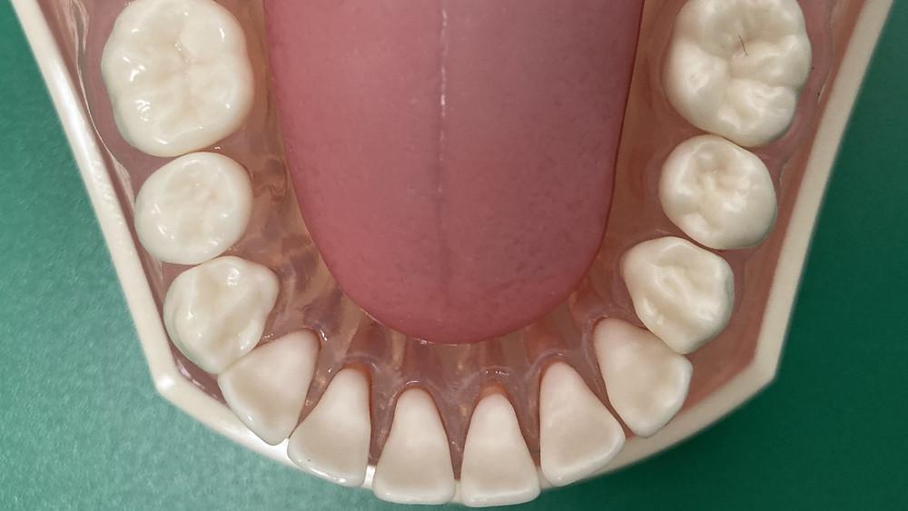 低位舌の1つで下顎歯列弓に入り込んだパターン。反対咬合の原因になる