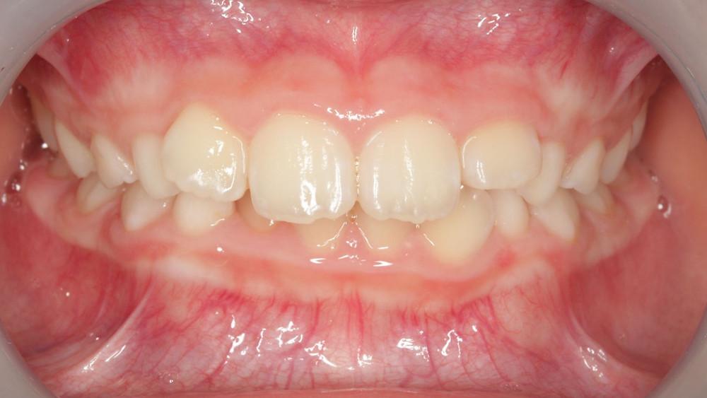 過蓋咬合は歯並び異常の一つで、子供だけでなく大人にもみられます。