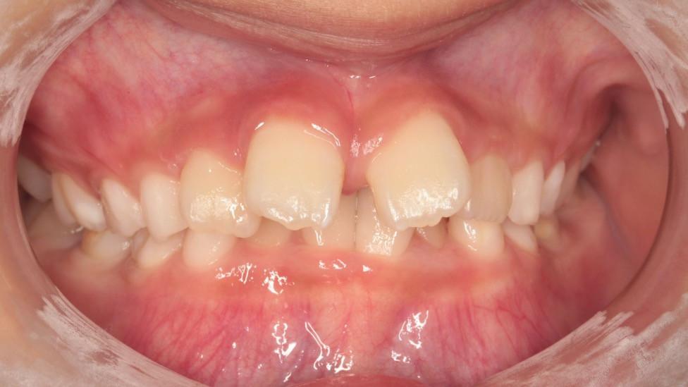 上下のオーバーバイトが大きい症例。下顎前歯が刺さっている異常な咬み合わせをしている。