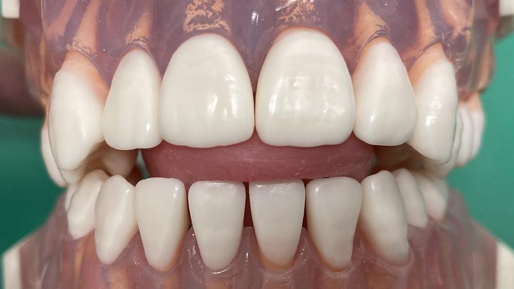 舌突出癖は舌を無意識のうちに必要な運動以外の位置や方向へ運動させてしまうクセです。上下前歯との間に入るようになると開咬という歯列不正・かみ合わせ異常をつくります。