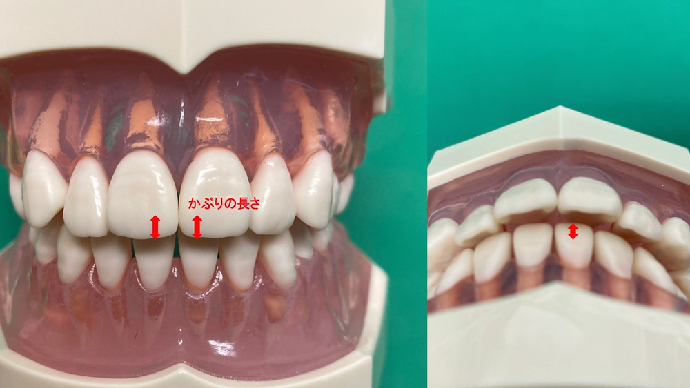 オーバーバイトとは歯科専門用語で上下顎前歯の被蓋を指します。主に歯科矯正の歯並びのチェックに利用されます。