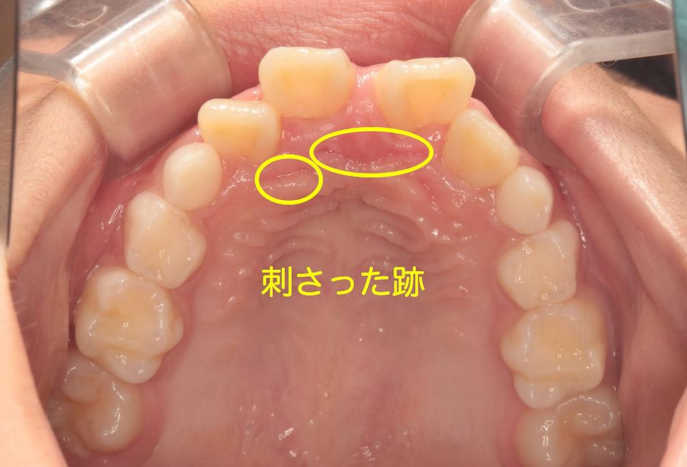 過蓋咬合は歯並びの異常だけではなく外傷の原因にもなりうるため歯科矯正が必要である。