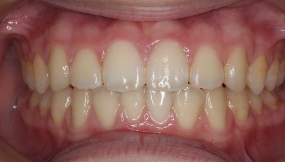 マイオブレースとMFTにより過蓋咬合と叢生はほぼ解消した。よって矯正治療は保定装置に移行した。