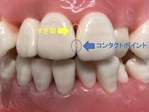歯間ブラシとデンタルフロスは何が違うの?歯ブラシをしっかりやれば歯間ブラシはやらなくてもいいの?(歯間ブラシのお話1)