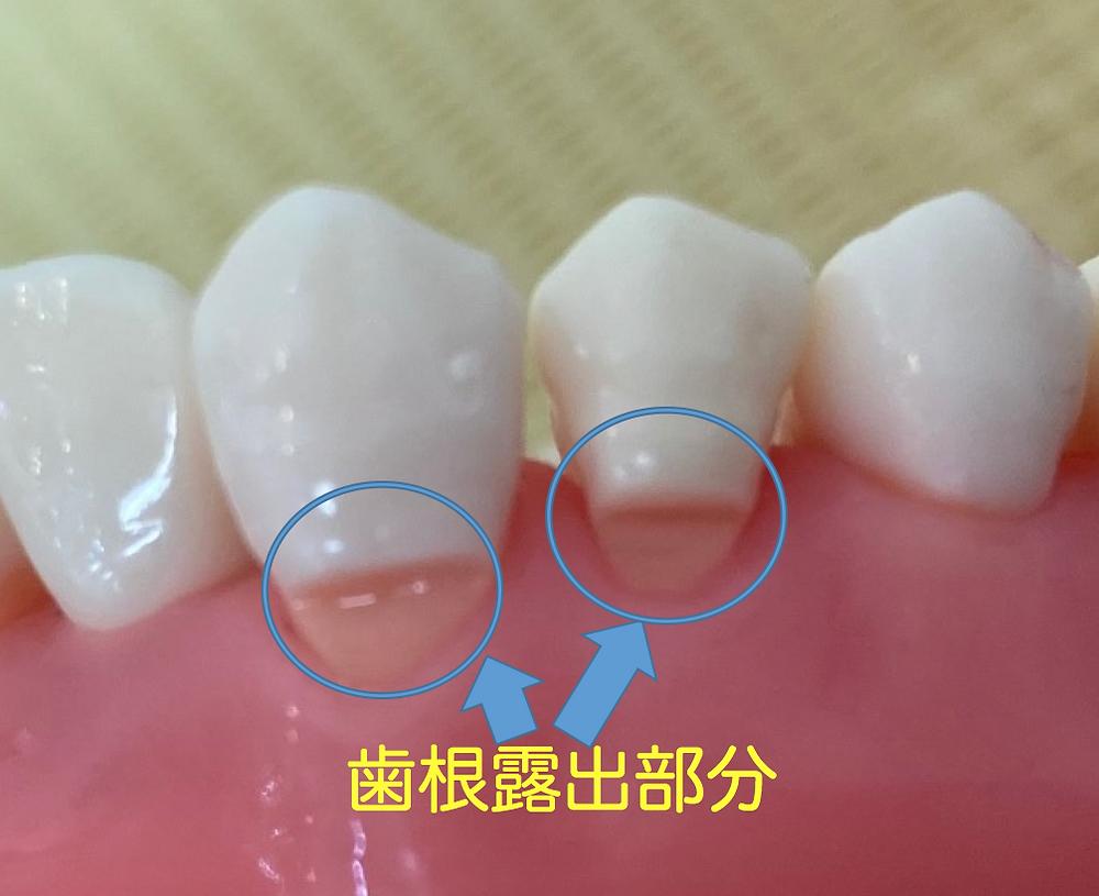 歯周病等で歯肉が退縮すると歯根面が露出します。