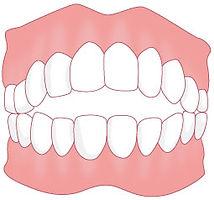 歯5 のコピー.jpg