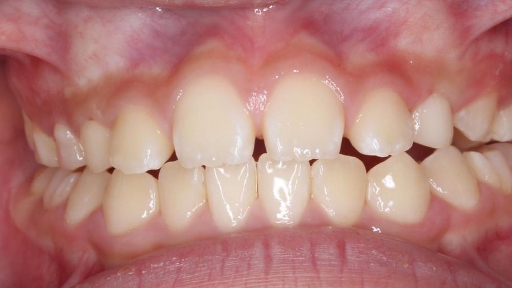 バイオブロック後マイオブレース とMFTを併用し、口腔周囲筋の改善を図りました。また舌突出癖の発生を抑えるために舌の正しい位置についての確認も毎回行い11ヶ月で開咬は解消されました。