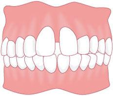 歯4 のコピー.jpg