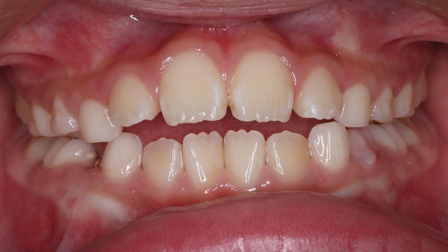 開咬あり、低位舌、嚥下児の舌突出、口蓋の深さを確認