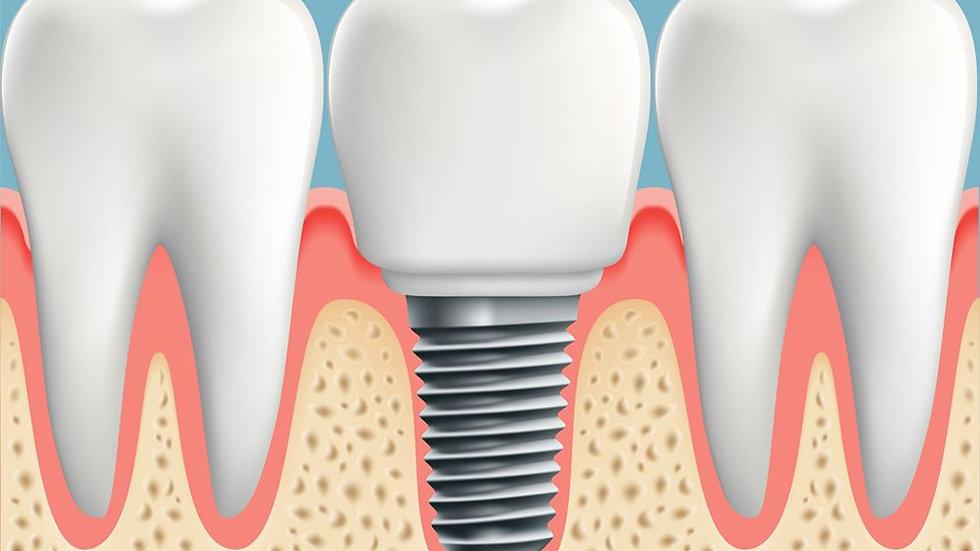 Single dental crown