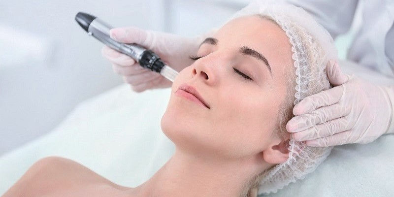 Microneedling Face and Neck