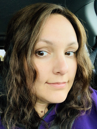 GUEST POST: Grappling with the Shame and Guilt of Hair Loss (Elle's Hair Corner)