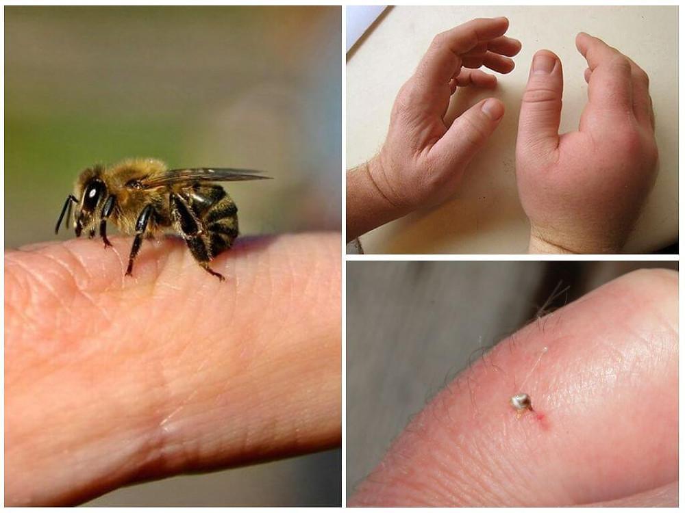ужаление пчелой