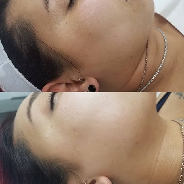 What a difference after just 1 dermaplan