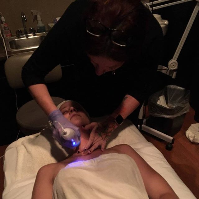 Microdermabrasion to combat summer damag