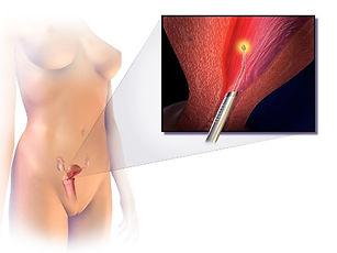 Endometrial_Ablation_edited.jpg
