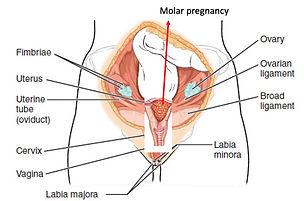 Molar pregnancy.jpg