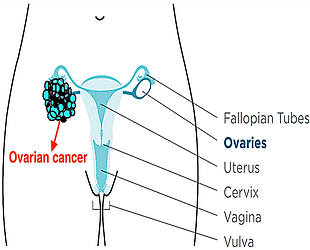 Ovarian cancer.png