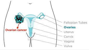 ovarian cancer treatment in bangalore